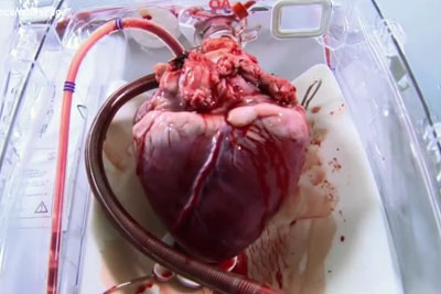 This Device Can Bring Dead Hearts Back To Life