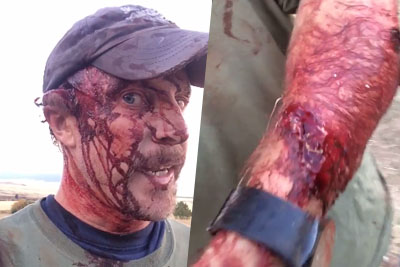 Dude Films Himself After Getting Mauled By A Grizzly, Walking 3 Miles To Get To Hospital
