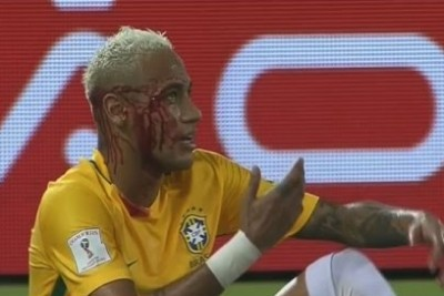 Neymar Gets All Blooded On The Match Against Bolivia