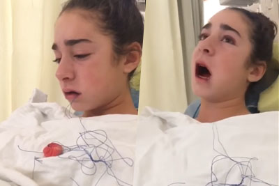 Girl Gets Her Wisdom Tooths Removed, Thinks They Stole Her Tounge