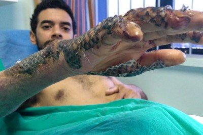 Can Fish Skin Be Used To Bandage Burns?