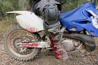 Motorcyclist's Leg Gets Punctured By A Splinter While Riding In The Woods
