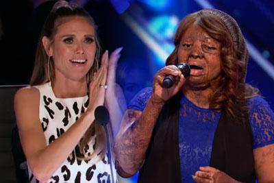 Plane-Crash Survivor Fights Back Through Singing, Impresses Everyone On America's Got Talent