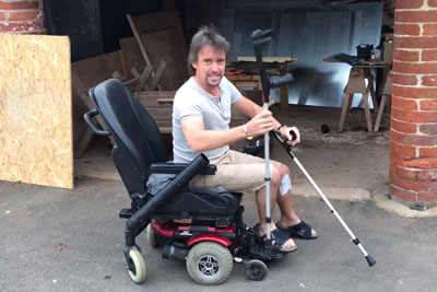"""Richard Hammond Jokes About His Injury: """"This Is My New Electric Vehicle!"""""""