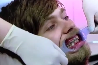 Patient Hasn't Brushed Teeth In 20 Years, This Happened To Him