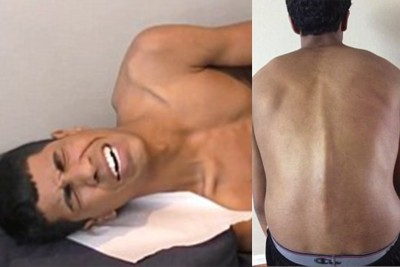 How A Chiropractor Changed This Teen's Life