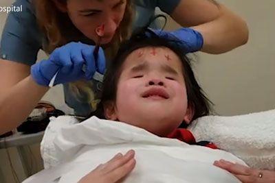 8-letna slepa deklica pela v bolnišnici, da bi premagala strah pred terapijo